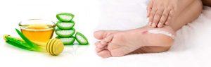 Aloe vera para cicatrizar y otros remedios para los pies