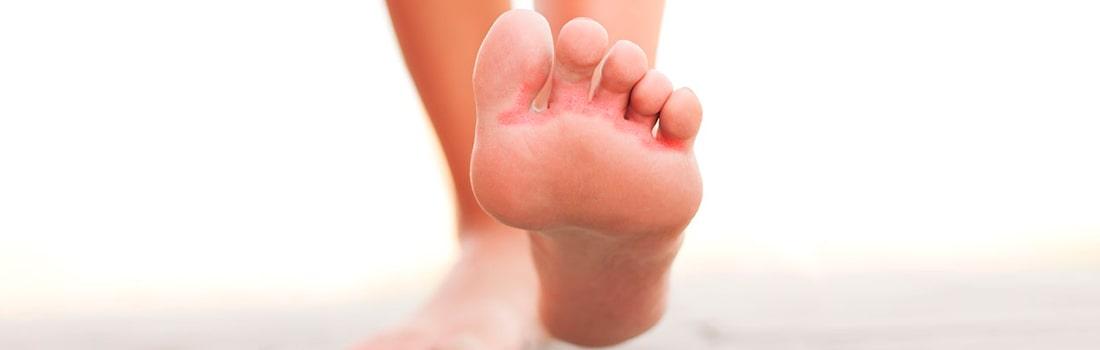 hongos en el pie