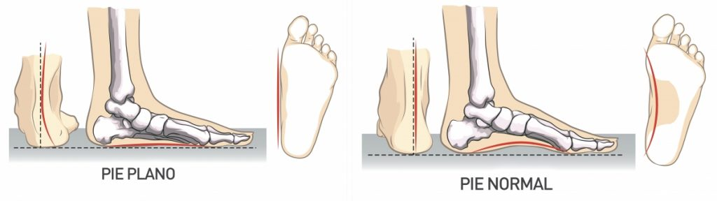 pies-planos