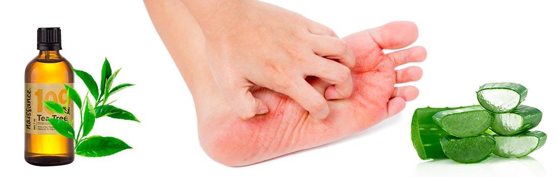 Tratamiento para hongos en los pies y cómo curarlos