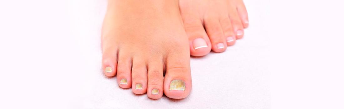 Onicomicosis en las uñas