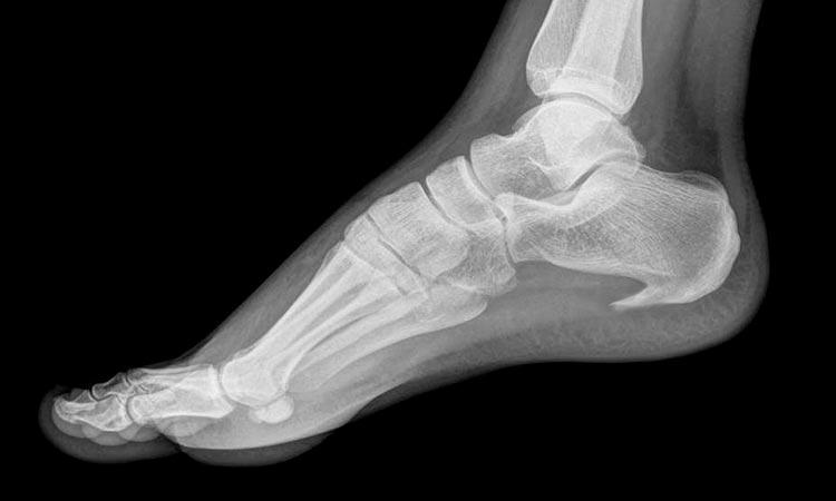 Radiografía espolón calcáneo